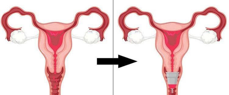 cupa menstruala introducere